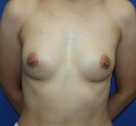 40代女性のピュアグラフト豊胸 After 症例写真