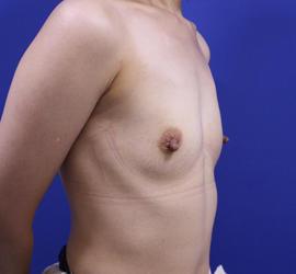 40代女性のピュアグラフト豊胸 Before 症例写真