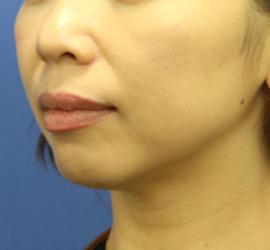 40代女性のシークレットリフト After 症例写真