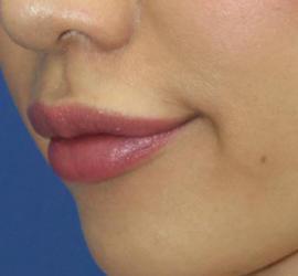 20代女性のヒアルロン酸注射(唇) After 症例写真