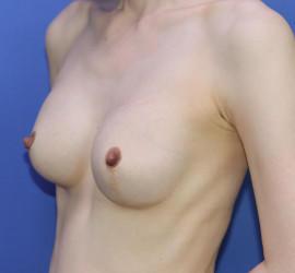 40代女性の豊胸バッグMotiva(モティバ)エルゴノミックス After 症例写真