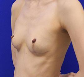 40代女性の豊胸バッグMotiva(モティバ)エルゴノミックス Before 症例写真