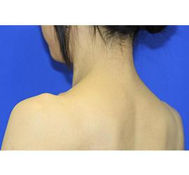 40代女性のボトックス(美肩・肩こり解消) After 症例写真