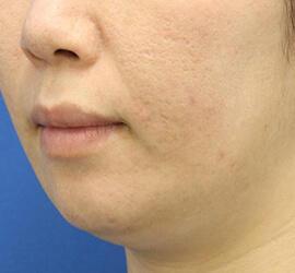 30代女性の小林式ニキビ治療法 After 症例写真