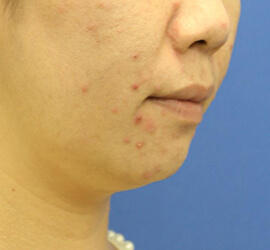 30代女性の小林式ニキビ治療法 Before 症例写真