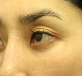 40代女性の3Dリポアイリフト  After 症例写真