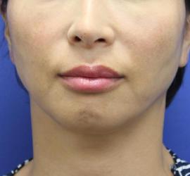 40代女性のシークレットリフト Before 症例写真