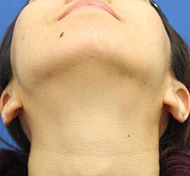 20代女性の小林式ニキビ治療法 After 症例写真