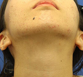20代女性の小林式ニキビ治療法 Before 症例写真