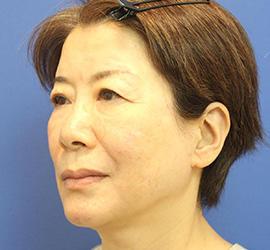 60代女性のヒアルロン酸骨格リフト After 症例写真