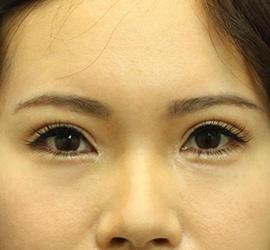 30代女性の全切開二重まぶた法 After 症例写真