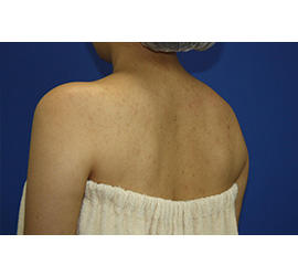30代女性のボトックス(美肩・肩こり解消) After 症例写真