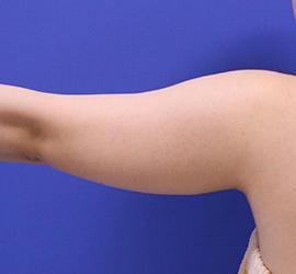 20代女性の脂肪吸引 Before 症例写真