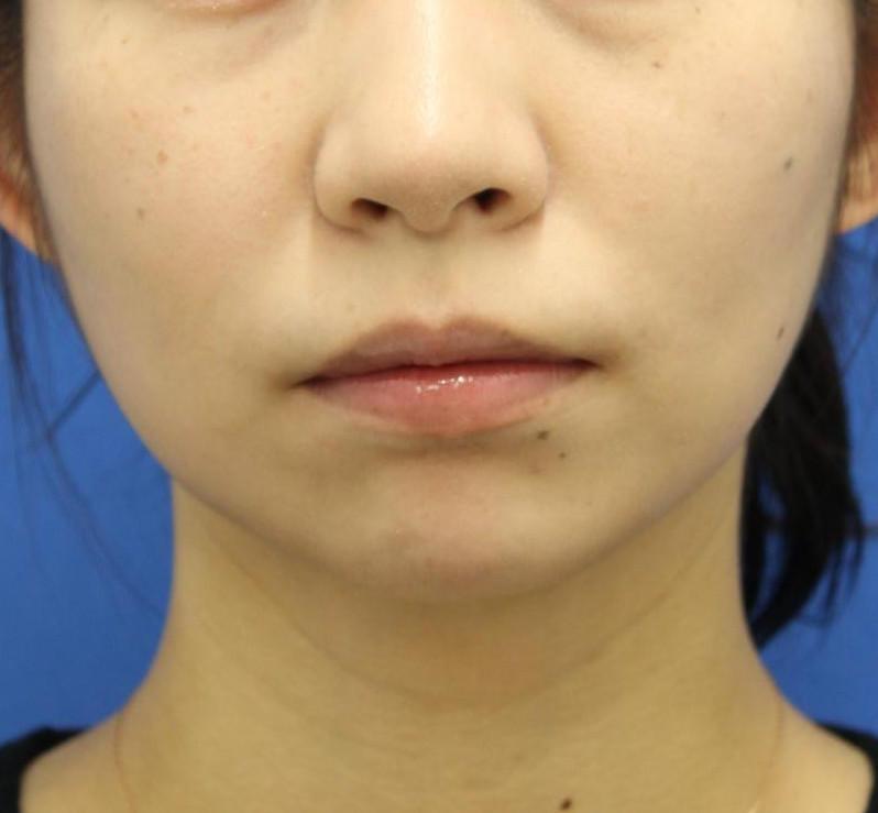 20代女性のバッカルファット After 症例写真