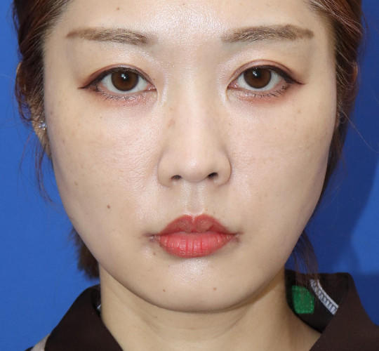 30代女性の口角挙上(スマイルリップ) After 症例写真