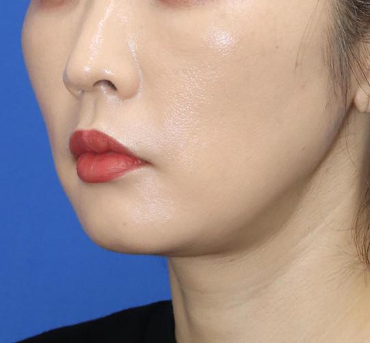 30代女性の口角挙上(スマイルリップ) Before 症例写真
