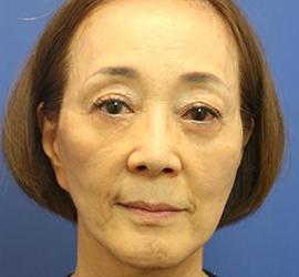 60代女性のヒアルロン酸骨格リフト Before 症例写真