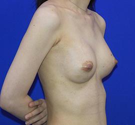 30代女性の豊胸バッグMotiva(モティバ)エルゴノミックス After 症例写真