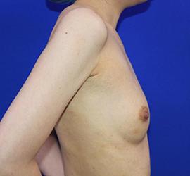 30代女性の豊胸バッグMotiva(モティバ)エルゴノミックス Before 症例写真