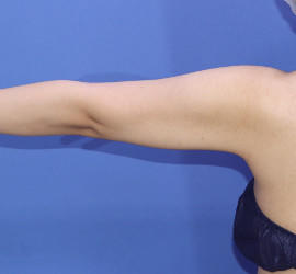 30代女性の脂肪吸引 After 症例写真
