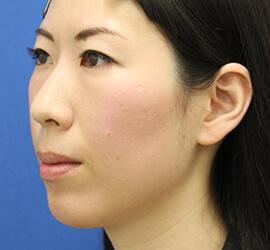 30代女性の肌再生高純度脂肪注入 After 症例写真