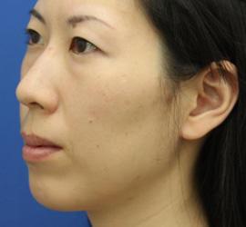 30代女性の肌再生高純度脂肪注入 Before 症例写真