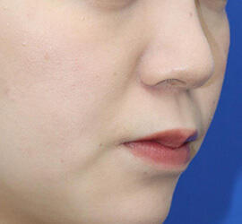 20代女性の人中短縮(リップリフト) Before 症例写真