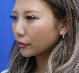 20代女性のヒアルロン酸注射(アゴ形成) After 症例写真