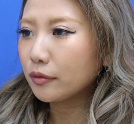 20代女性のヒアルロン酸注射(アゴ形成) Before 症例写真