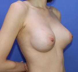 20代女性の豊胸バッグMotiva(モティバ)エルゴノミックス After 症例写真