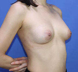 20代女性の豊胸バッグMotiva(モティバ)エルゴノミックス Before 症例写真