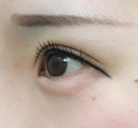 20代女性の眼瞼下垂(目つき矯正) After 症例写真