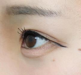 20代女性の眼瞼下垂(目つき矯正) Before 症例写真