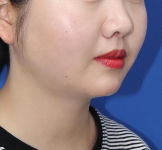 20代女性の人中短縮(リップリフト) After 症例写真