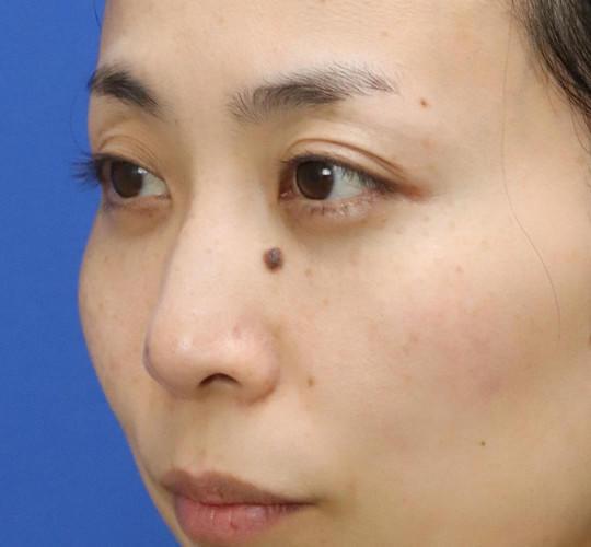 30代女性の3Dリポアイリフト  After 症例写真