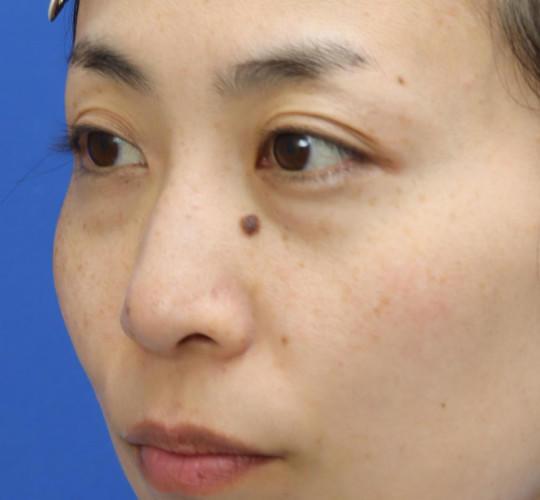 30代女性の3Dリポアイリフト  Before 症例写真