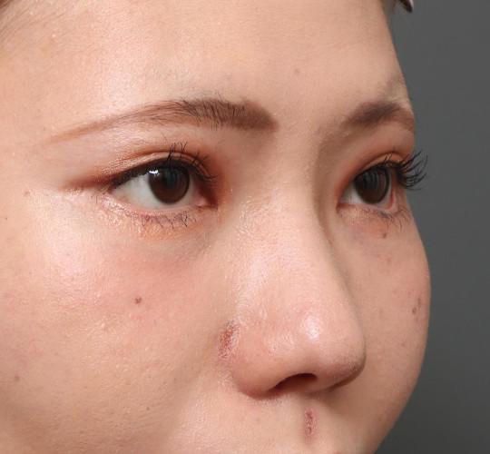 20代女性のたれ目・でか目形成 After 症例写真