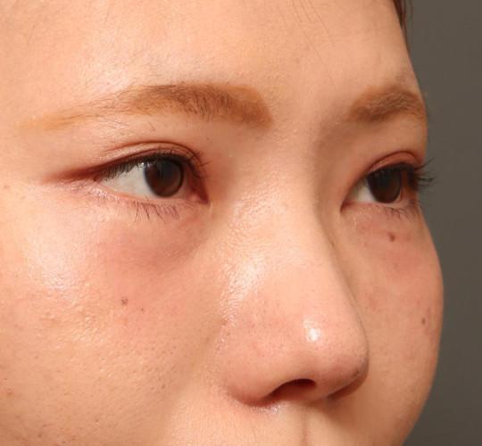 20代女性のたれ目・でか目形成 Before 症例写真