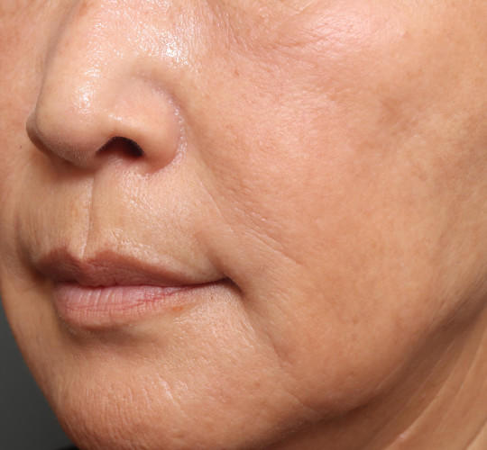 60代女性の真皮線維芽細胞療法 After 症例写真