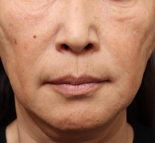 60代女性の真皮線維芽細胞療法 Before 症例写真