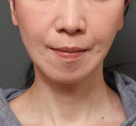 40代女性のミニリフト・フェイスリフト After 症例写真
