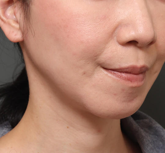 40代女性のフェイスリフト・フルフェイスリフト After 症例写真