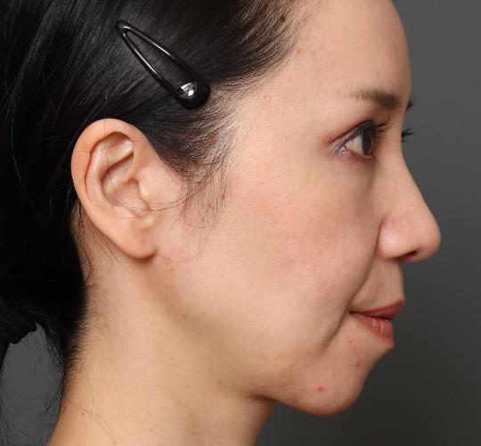 40代女性のミニリフト・フェイスリフト Before 症例写真