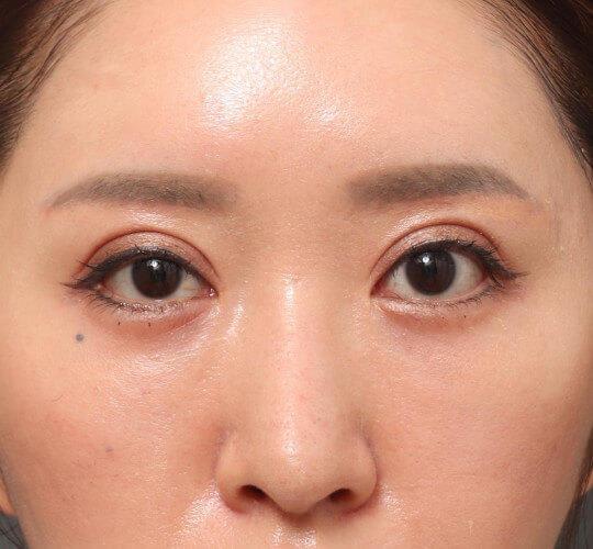 30代女性の眉下切開法 After 症例写真