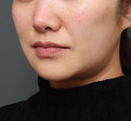 30代女性のメーラーファット除去 Before 症例写真