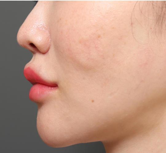 30代女性のアゴプロテーゼ(アゴ整形) After 症例写真