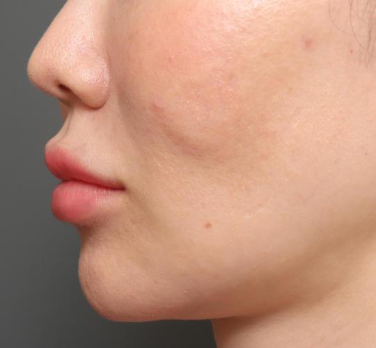 30代女性のアゴプロテーゼ(アゴ整形) Before 症例写真