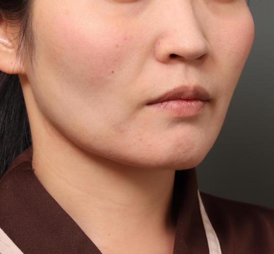 30代女性のバッカルファット除去 After 症例写真