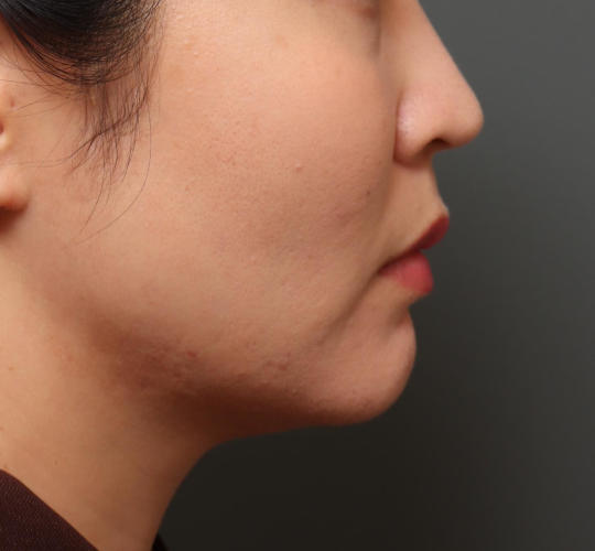 30代女性のバッカルファット除去 Before 症例写真