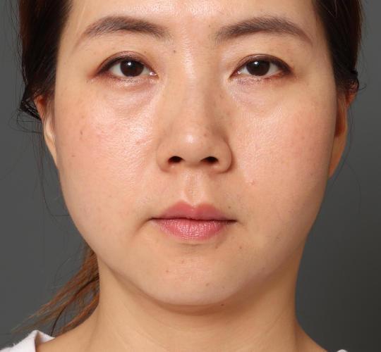 30代女性の顔の脂肪吸引  After 症例写真